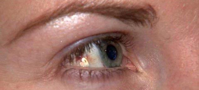 Si fa impiantare un gioiello nell'occhio