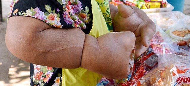 La donna con le mani più grandi al mondo