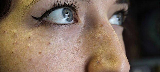 Nuova moda: farsi tatuare le lentiggini