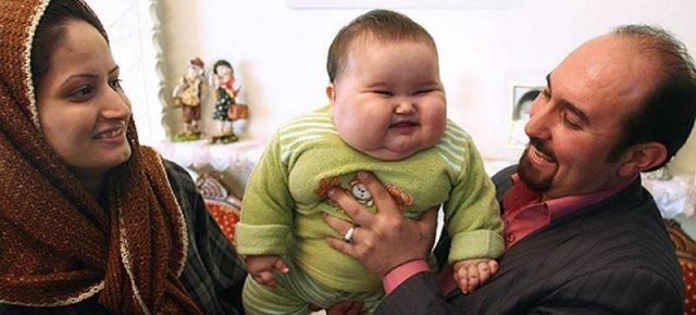 Bimbo di 8 mesi pesa già 20kg