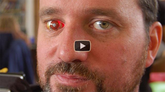 Quest'uomo si è fatto impiantare una microcamera nell'occhio