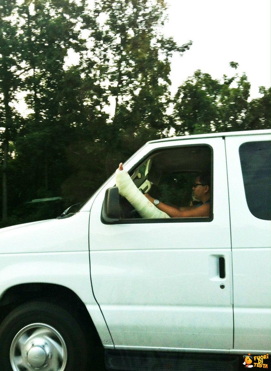 Guidare con una gamba rotta
